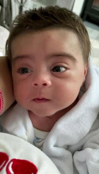 ولادة طفل بشعر كامل